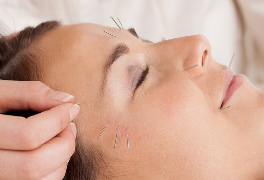 Acupuncture - Dynamic Physiotherapy